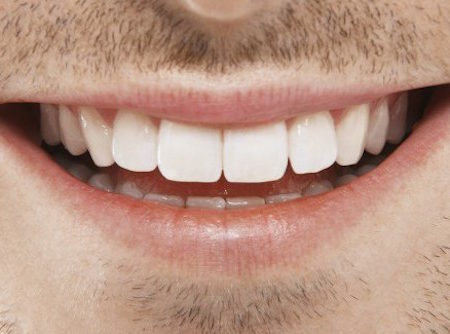 Man teeth white